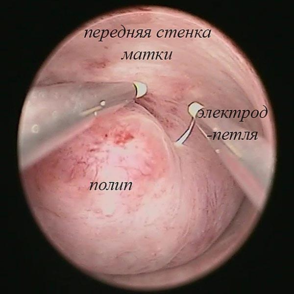 Про гистероскопию / Справочная информация / Лапароскопия в Воронеже
